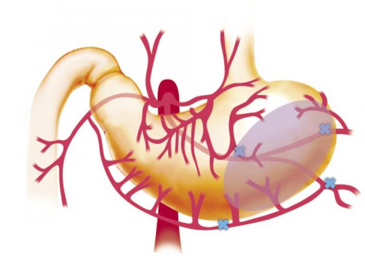 Síndrome de dilatación-vólvulo gástrico (DVG)