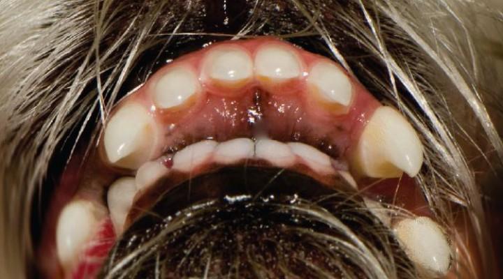 hipoplasia maxilar síntomas de diabetes